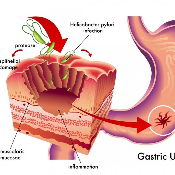 胃幽門桿菌