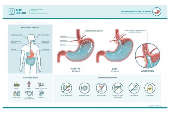 胃食道逆流