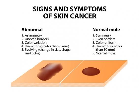 黑色素細胞瘤